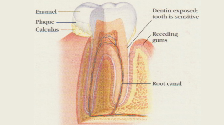 Root Canal Treatment in NYC dental office 10001