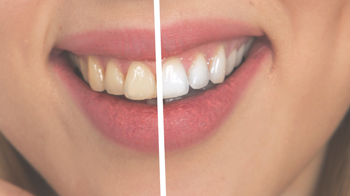 Teeth Whitening in NYC dental office